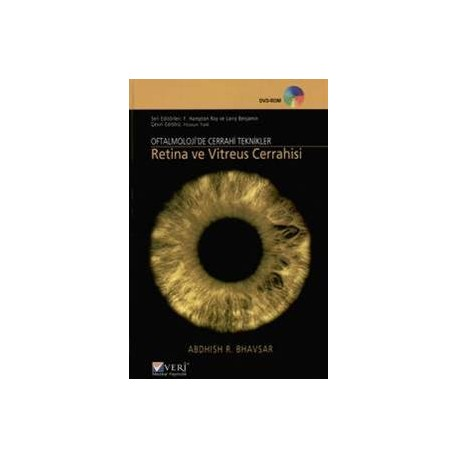 Oftalmolojide Cerrahi Teknikler Retina ve Vitreus Cerrahisi