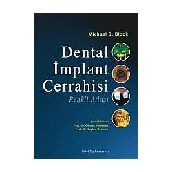 Dental İmplant Cerrahisi Renkli Atlası