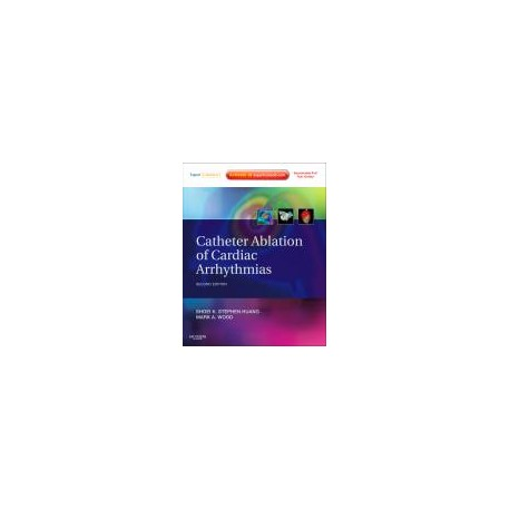 Catheter Ablation of Cardiac Arrhythmias, 2nd Edition