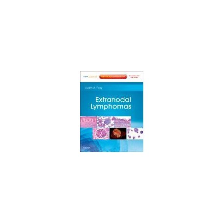 Extranodal Lymphomas
