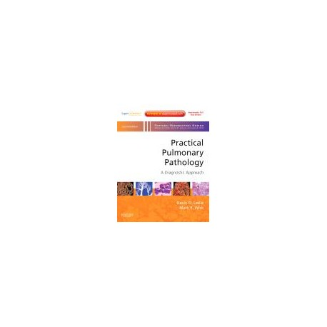 Practical Pulmonary Pathology: A Diagnostic Approach, 2nd Edition