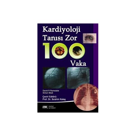 Kardiyoloji Tanısı Zor 100 Vaka