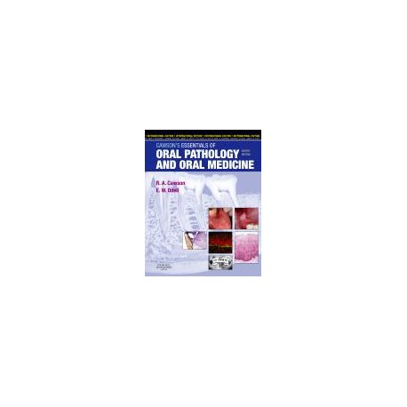 Cawson's Essentials of Oral Pathology and Oral Medicine, International Edition, 8th Edition