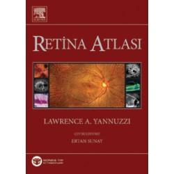 Yannuzzi Retina Atlası,Türkçe 2013 Baskı