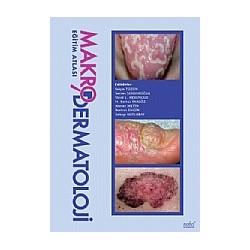 Makro Dermatoloji Eğitim Atlası