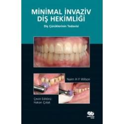 Minimal İnvaziv Diş Hekimliği Diş Çürüklerinin Tedavisi