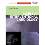 CASES İN INTERVENTİONAL CARDİOLOGY: EXPERT CONSULT KİNDLE EDİTİON