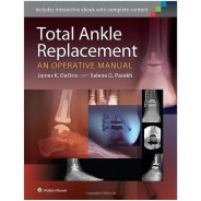 Total Ankle Replacement: An Operative Manual First Edition