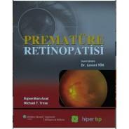 Prematüre Retinopatisi