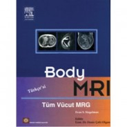 Body MRI