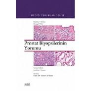 Prostat Biyopsilerinin Yorumu Biyopsi Yorumları Serisi