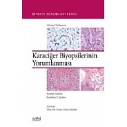 Karaciğer Biyopsilerinin Yorumlanması Biyopsi Yorumları Serisi
