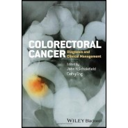 Colorectal Cancer: Diagnosis and Clinical Management 1st Edition