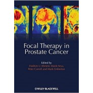Focal Therapy in Prostate Cancer 1st Edition