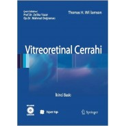 Vitreoretinal Cerrahi