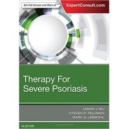 Therapy for Severe Psoriasis