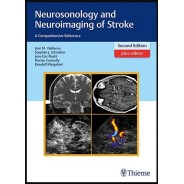 Neurosonology and Neuroimaging of Stroke: A Comprehensive Reference 2nd edition Edition