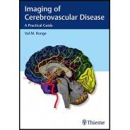 Imaging of Cerebrovascular Disease: A Practical Guide 1st Edition