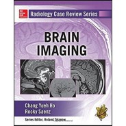 Radiology Case Review Series Brain Imaging