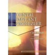 Dental İmplant Protezler