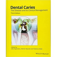 Dental Caries: The Disease and its Clinical Management 3rd Edition