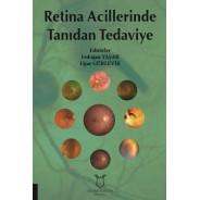Retina Acillerinde Tanıdan Tedaviye