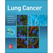 Lung Cancer: Standards Of Care