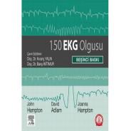 150 EKG Olgusu