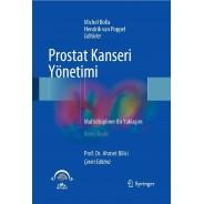 Prostat Kanseri Yönetimi