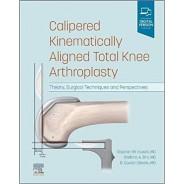 Calipered Kinematically aligned Total Knee Arthroplasty