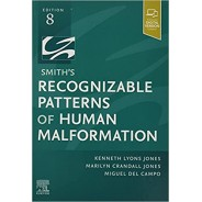 Smith's Recognizable Patterns of Human Malformation, 8th Edition